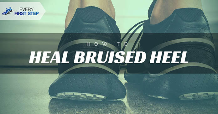 how-to-heal-a-bruised-heel-without-going-to-the-doctor