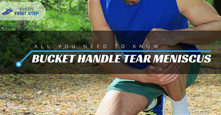 Bucket Handle Tear Meniscus